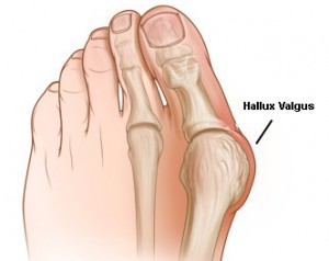 Hallux Valgus - OA Dr. Wilfried Materna